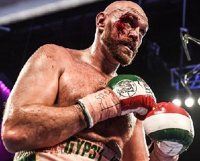 Tyson Fury defeats Otto Wallin after bloody 12 rounds
