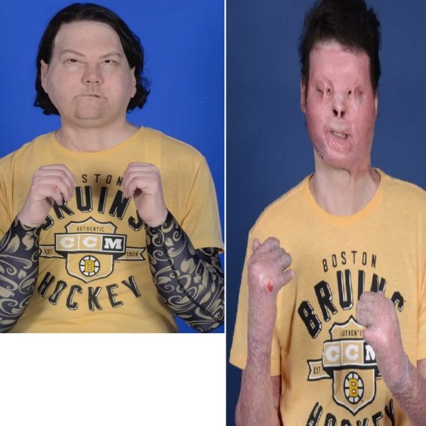 Joseph DiMeo becomes the first man to receive a successful face and hands transplants